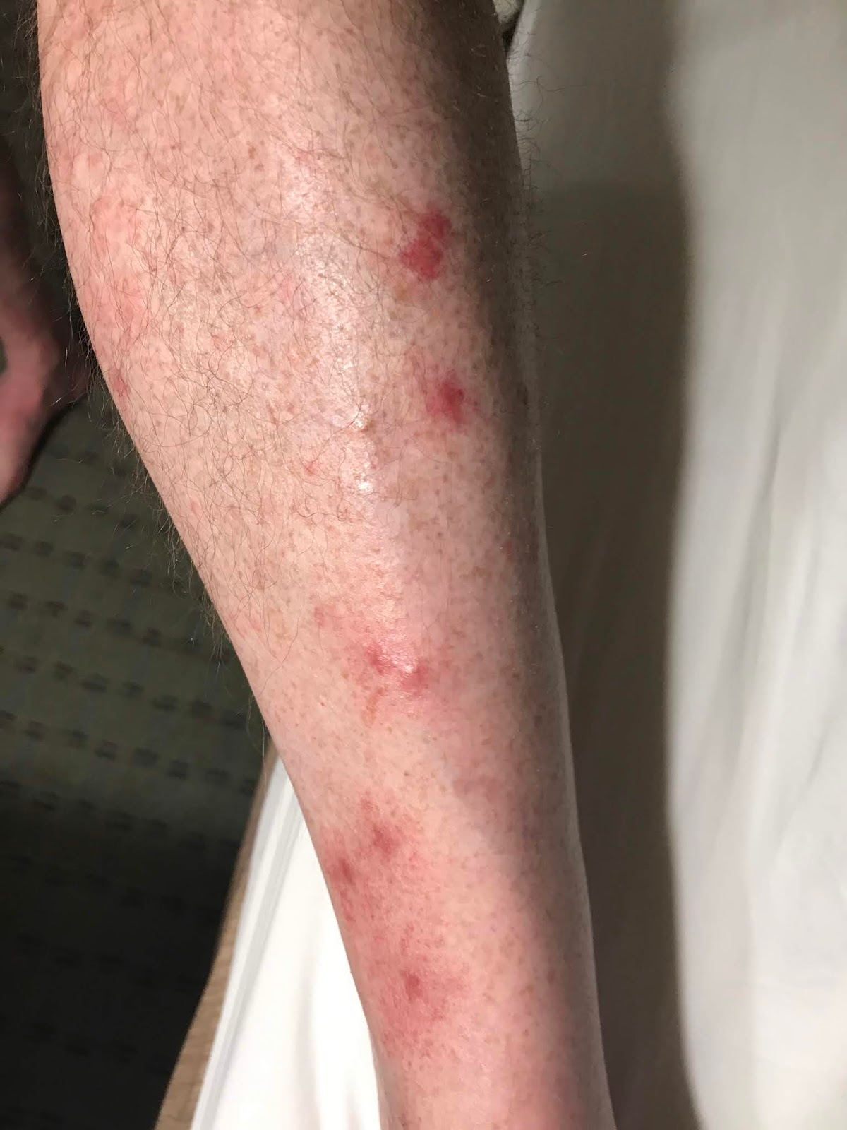 Photo of lower leg with multiple Chigger (insect) bites